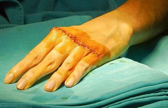 """Bệnh viện Tâm Anh """"hồi sinh"""" cho đôi bàn tay bị biến dạng, không co duỗi được suốt 20 năm"""