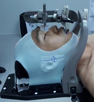 Rút ngắn thời gian xạ trị cho bệnh nhân ung thư nhờ kỹ thuật mới