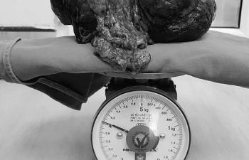 Phẫu thuật thành công cho nam bệnh nhân có khối u nặng gần 4kg